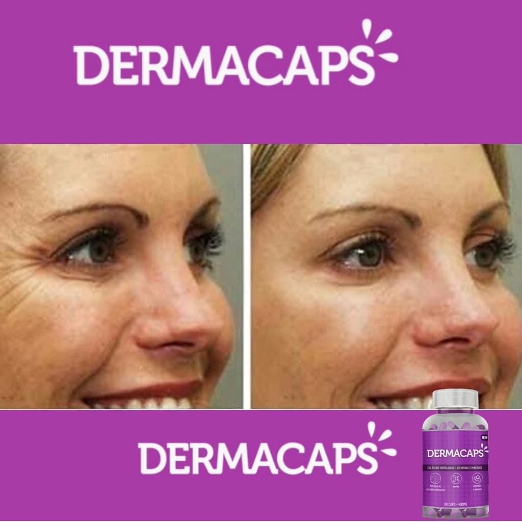 dermacaps 5